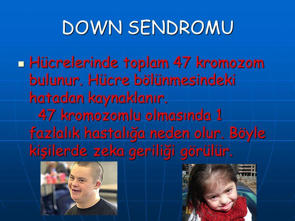 DOWN SENDROMU Hücrelerinde toplam 47 kromozom bulunur. Hücre bölünmesindeki hatadan kaynaklanır. 47 kromozomlu olmasında 1 fazlalık hastalığa neden ol