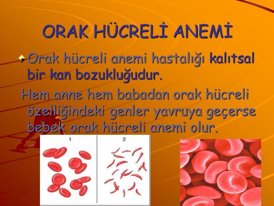 ORAK HÜCRELİ ANEMİ Orak hücreli anemi hastalığı kalıtsal bir kan bozukluğudur. Hem anne hem babadan orak hücreli özelliğindeki genler yavruya geçerse