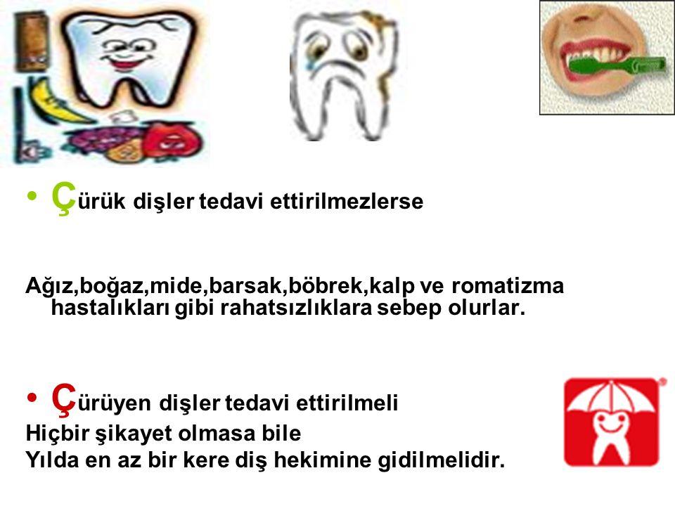 Ç ürük dişler tedavi ettirilmezlerse Ağız,boğaz,mide,barsak,böbrek,kalp ve romatizma hastalıkları gibi rahatsızlıklara sebep olurlar. Ç ürüyen dişler
