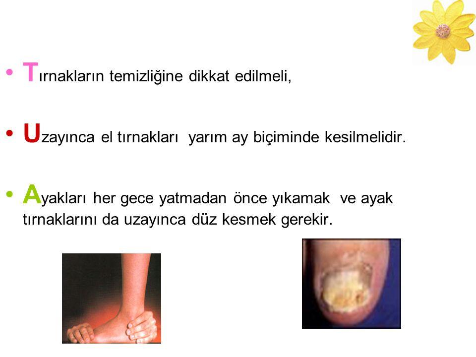 T ırnakların temizliğine dikkat edilmeli, U zayınca el tırnakları yarım ay biçiminde kesilmelidir.