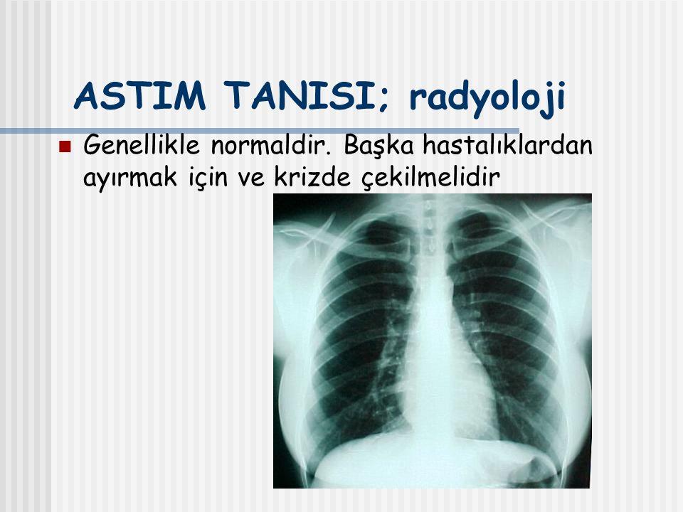 ASTIM TANISI; radyoloji Genellikle normaldir. Başka hastalıklardan ayırmak için ve krizde çekilmelidir