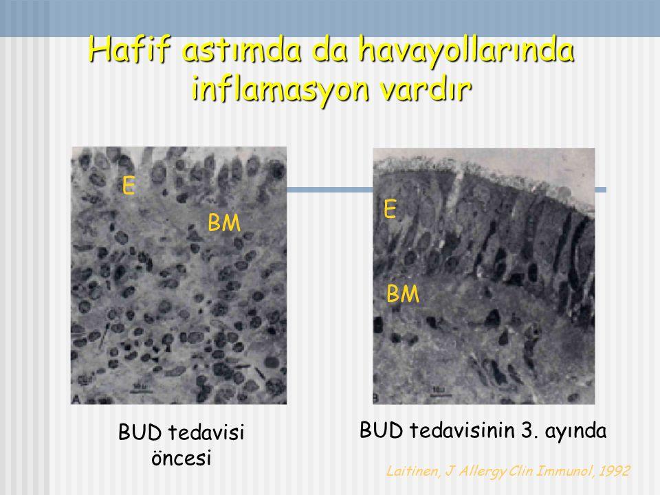 Hafif astımda da havayollarında inflamasyon vardır Laitinen, J Allergy Clin Immunol, 1992 E BM BUD tedavisi öncesi E BM BUD tedavisinin 3. ayında