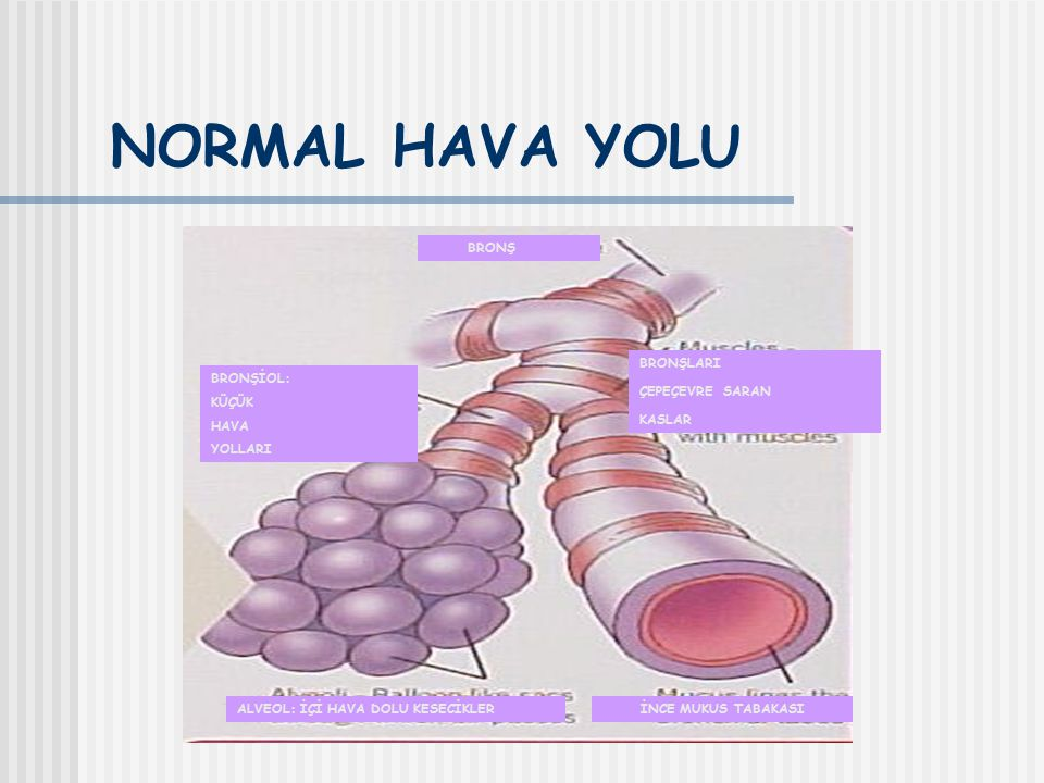 ASTIM TANISI; Muayene Hastalığın ve krizin ağırlık derecesine göre değişir.