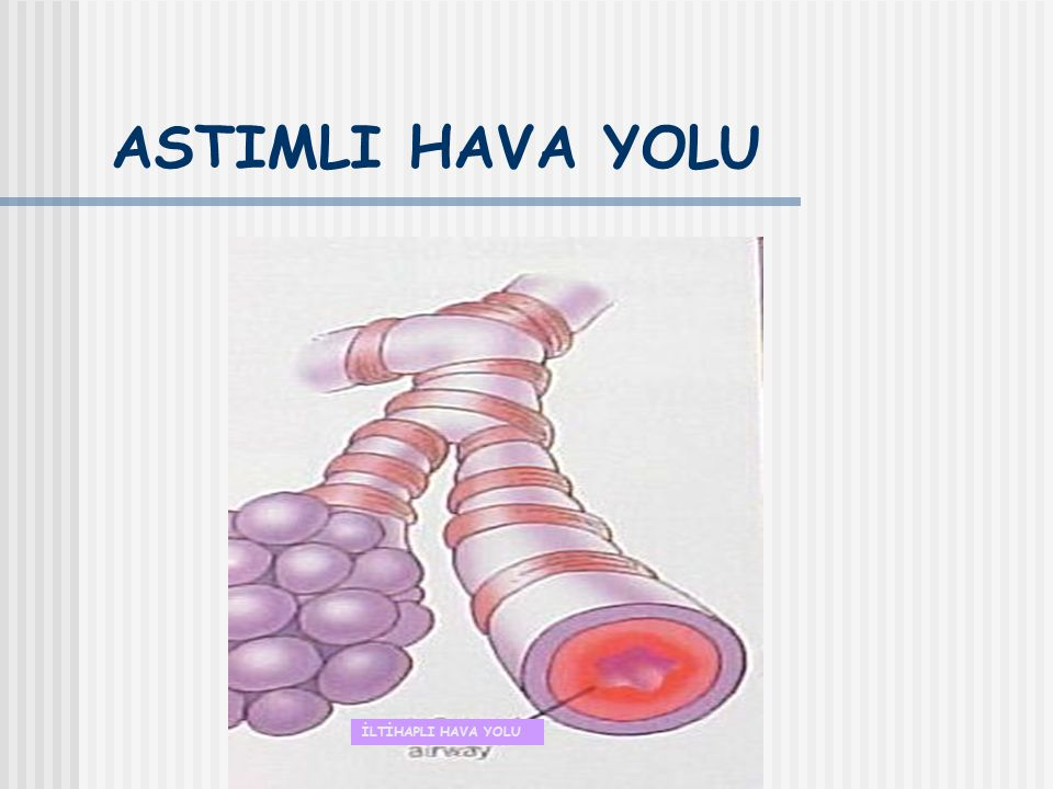 Astımdaki temel mediyatörler Kemokinler (recruitment) (Eotaksin → Eoz., TARC ve MDC → Th2) Sisteinil lökotrienler Sitokinler (İnflamatuar yanıtı yönetir)(IL-1β, TNF-α,GM-CSF, IL-5,IL-4,IL-13) Histamin NO (ep hüc) Prostoglandin D2 (mast hüc) GINA 2006