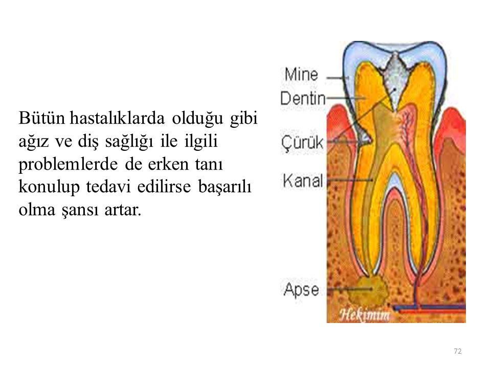 Bütün hastalıklarda olduğu gibi ağız ve diş sağlığı ile ilgili problemlerde de erken tanı konulup tedavi edilirse başarılı olma şansı artar. 72