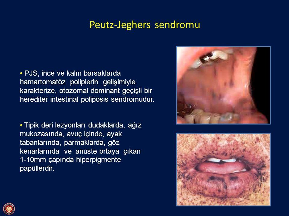 Peutz-Jeghers sendromu PJS, ince ve kalın barsaklarda hamartomatöz poliplerin gelişimiyle karakterize, otozomal dominant geçişli bir herediter intesti
