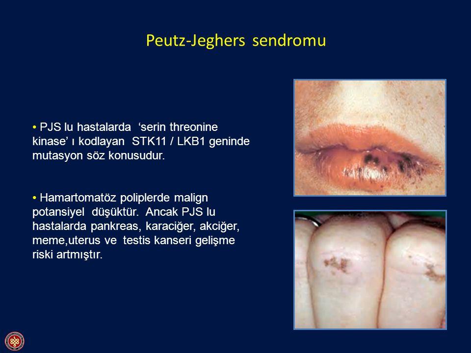 Peutz-Jeghers sendromu PJS lu hastalarda 'serin threonine kinase' ı kodlayan STK11 / LKB1 geninde mutasyon söz konusudur. Hamartomatöz poliplerde mali