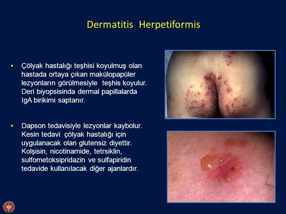 Dermatitis Herpetiformis Çölyak hastalığı teşhisi koyulmuş olan hastada ortaya çıkan makülopapüler lezyonların görülmesiyle teşhis koyulur. Deri biyop