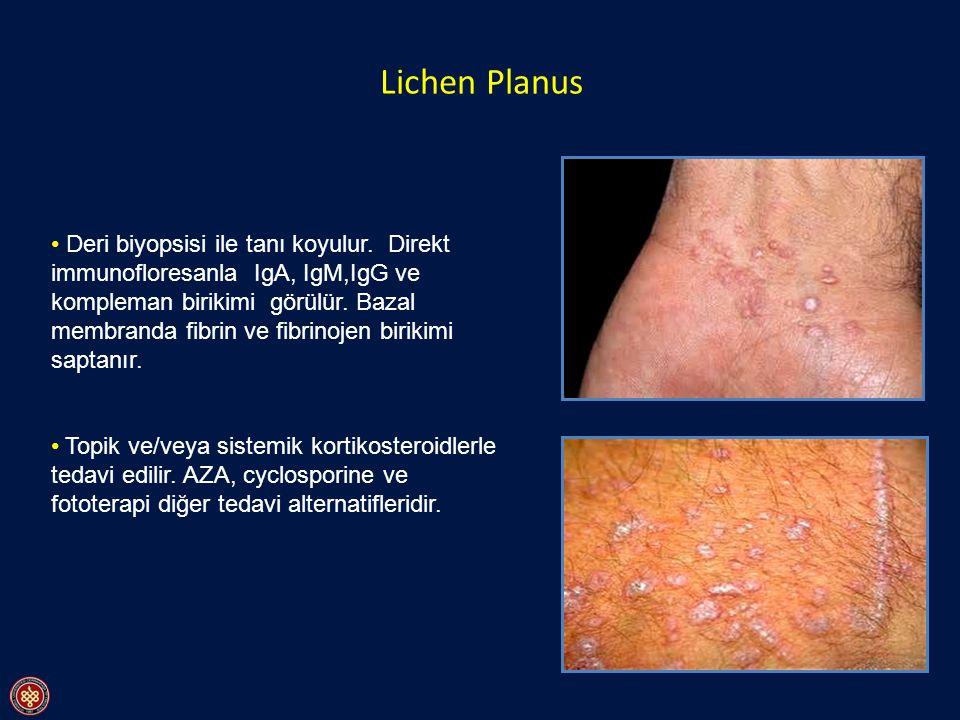 Lichen Planus Deri biyopsisi ile tanı koyulur. Direkt immunofloresanla IgA, IgM,IgG ve kompleman birikimi görülür. Bazal membranda fibrin ve fibrinoje