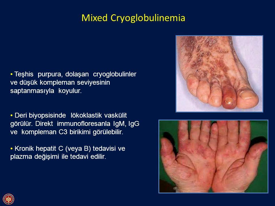 Mixed Cryoglobulinemia Teşhis purpura, dolaşan cryoglobulinler ve düşük kompleman seviyesinin saptanmasıyla koyulur. Deri biyopsisinde lökoklastik vas