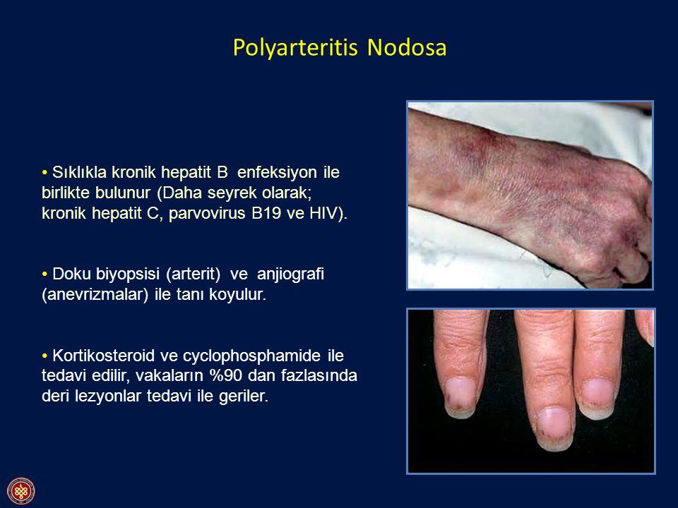 Polyarteritis Nodosa Sıklıkla kronik hepatit B enfeksiyon ile birlikte bulunur (Daha seyrek olarak; kronik hepatit C, parvovirus B19 ve HIV). Doku biy