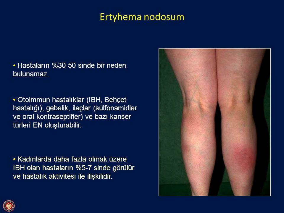 Ertyhema nodosum Hastaların %30-50 sinde bir neden bulunamaz. Otoimmun hastalıklar (IBH, Behçet hastalığı), gebelik, ilaçlar (sülfonamidler ve oral ko