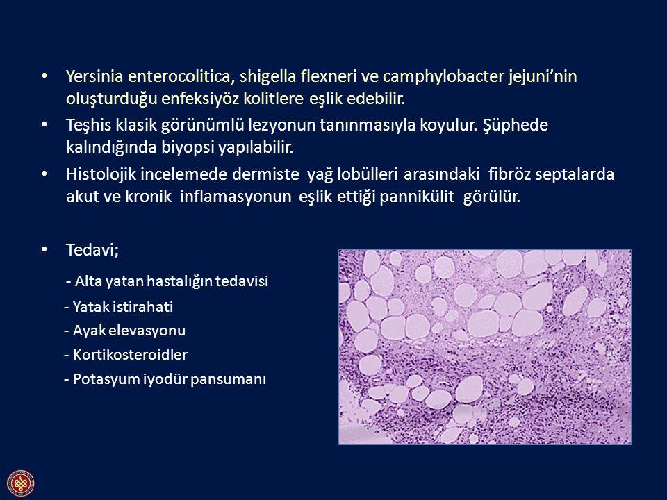 Yersinia enterocolitica, shigella flexneri ve camphylobacter jejuni'nin oluşturduğu enfeksiyöz kolitlere eşlik edebilir. Teşhis klasik görünümlü lezyo