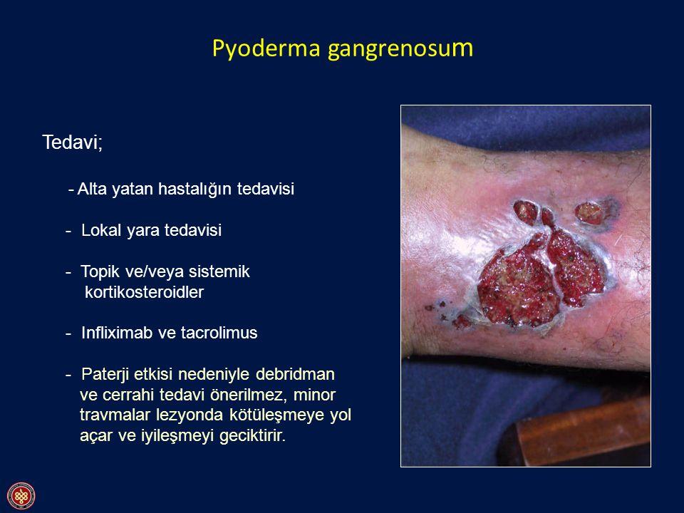 Pyoderma gangrenosu m Tedavi; - Alta yatan hastalığın tedavisi - Lokal yara tedavisi - Topik ve/veya sistemik kortikosteroidler - Infliximab ve tacrol