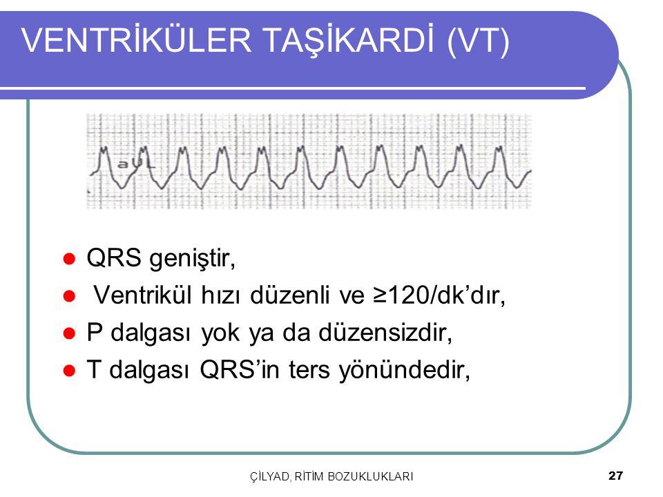ÇİLYAD, RİTİM BOZUKLUKLARI 27 VENTRİKÜLER TAŞİKARDİ (VT) QRS geniştir, Ventrikül hızı düzenli ve ≥120/dk'dır, P dalgası yok ya da düzensizdir, T dalga