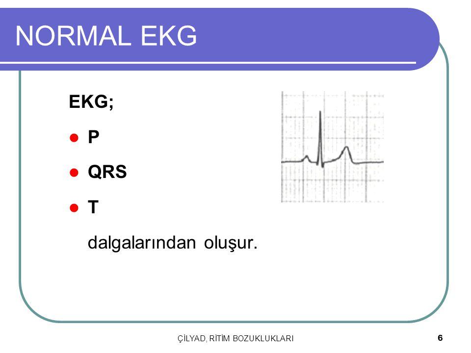 ÇİLYAD, RİTİM BOZUKLUKLARI 6 NORMAL EKG EKG; P QRS T dalgalarından oluşur.