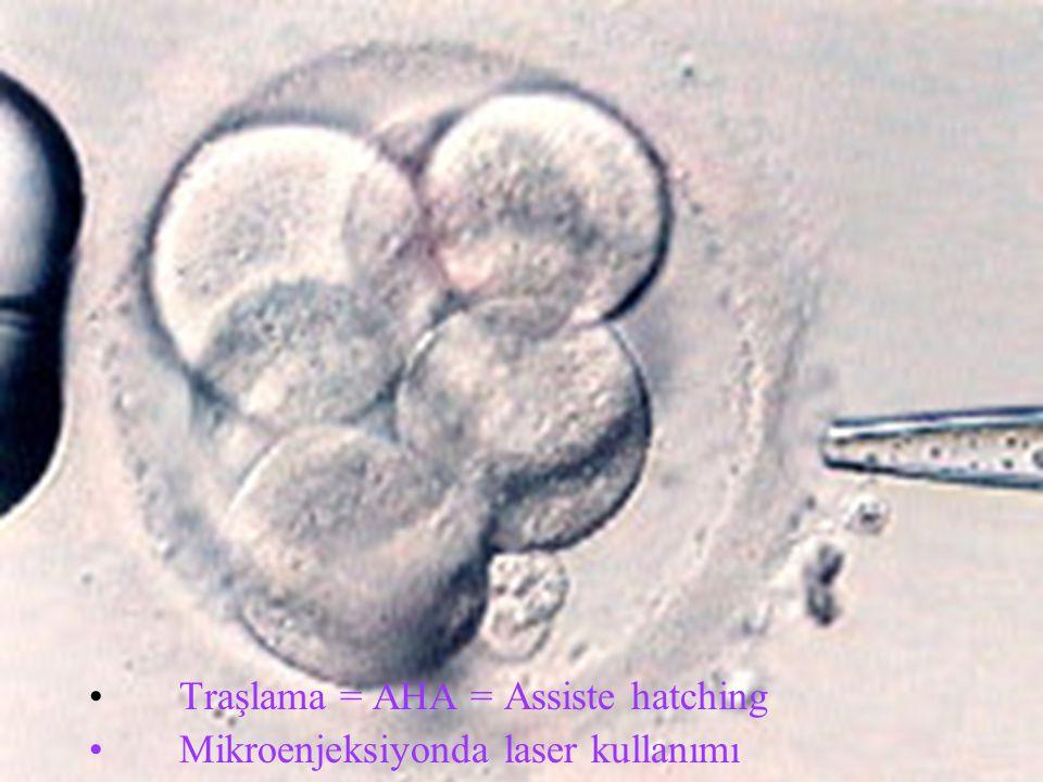 Traşlama = AHA = Assiste hatching Mikroenjeksiyonda laser kullanımı