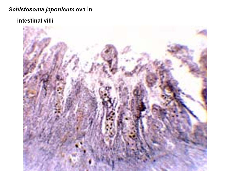 Schistosoma japonicum ova in intestinal villi