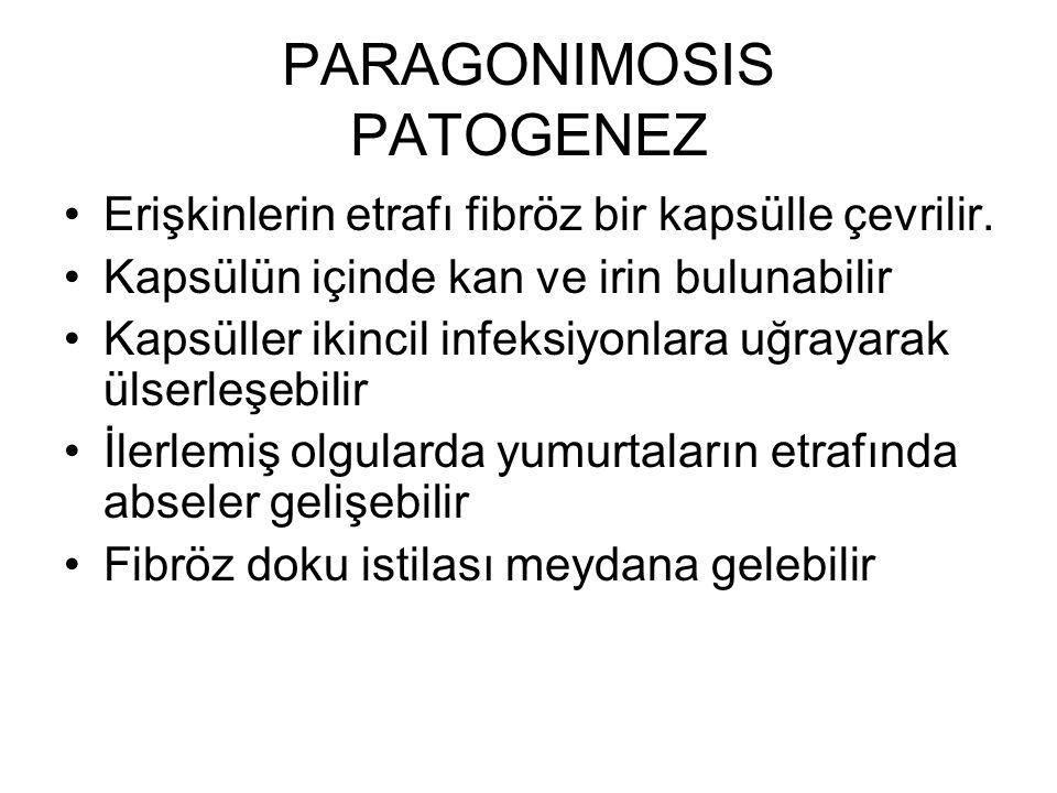 PARAGONIMOSIS PATOGENEZ Erişkinlerin etrafı fibröz bir kapsülle çevrilir. Kapsülün içinde kan ve irin bulunabilir Kapsüller ikincil infeksiyonlara uğr