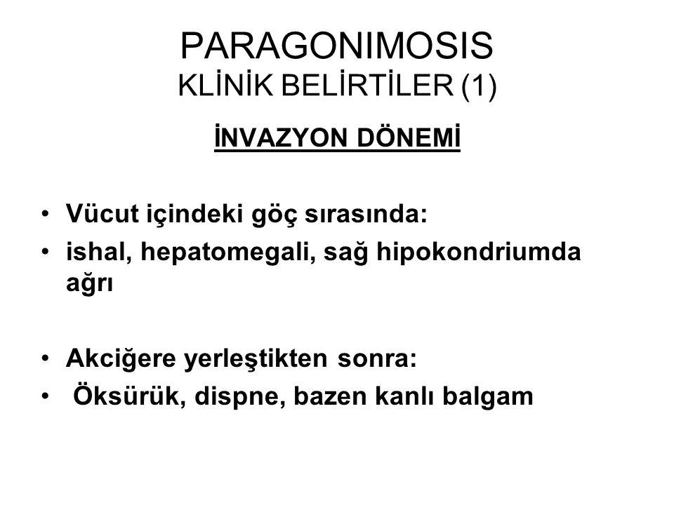 PARAGONIMOSIS KLİNİK BELİRTİLER (1) İNVAZYON DÖNEMİ Vücut içindeki göç sırasında: ishal, hepatomegali, sağ hipokondriumda ağrı Akciğere yerleştikten s