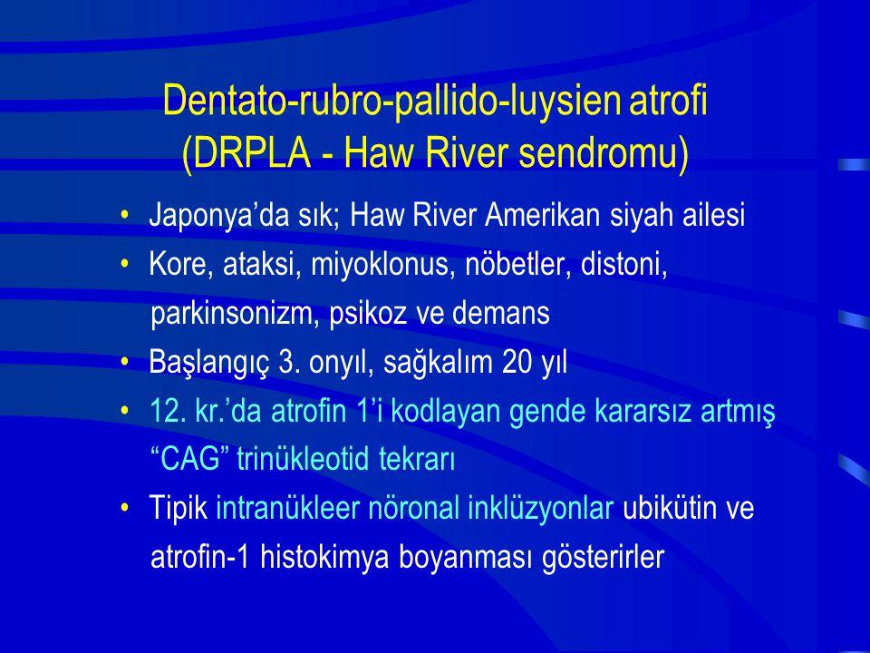 Dentato-rubro-pallido-luysien atrofi (DRPLA - Haw River sendromu) Japonya'da sık; Haw River Amerikan siyah ailesi Kore, ataksi, miyoklonus, nöbetler,