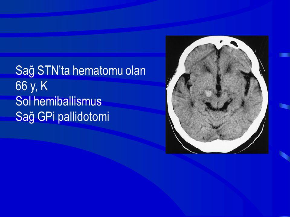 Sağ STN'ta hematomu olan 66 y, K Sol hemiballismus Sağ GPi pallidotomi