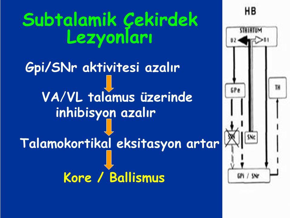 Subtalamik Çekirdek Lezyonları Gpi/SNr aktivitesi azalır VA/VL talamus üzerinde inhibisyon azalır Talamokortikal eksitasyon artar Kore / Ballismus