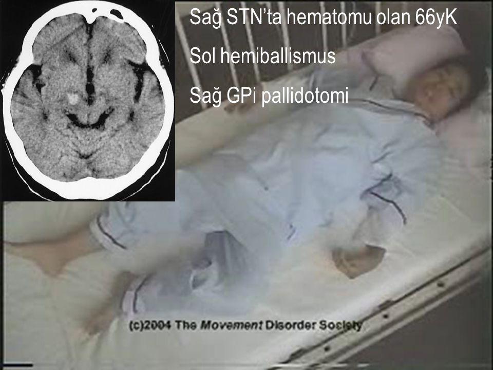 Sağ STN'ta hematomu olan 66yK Sol hemiballismus Sağ GPi pallidotomi