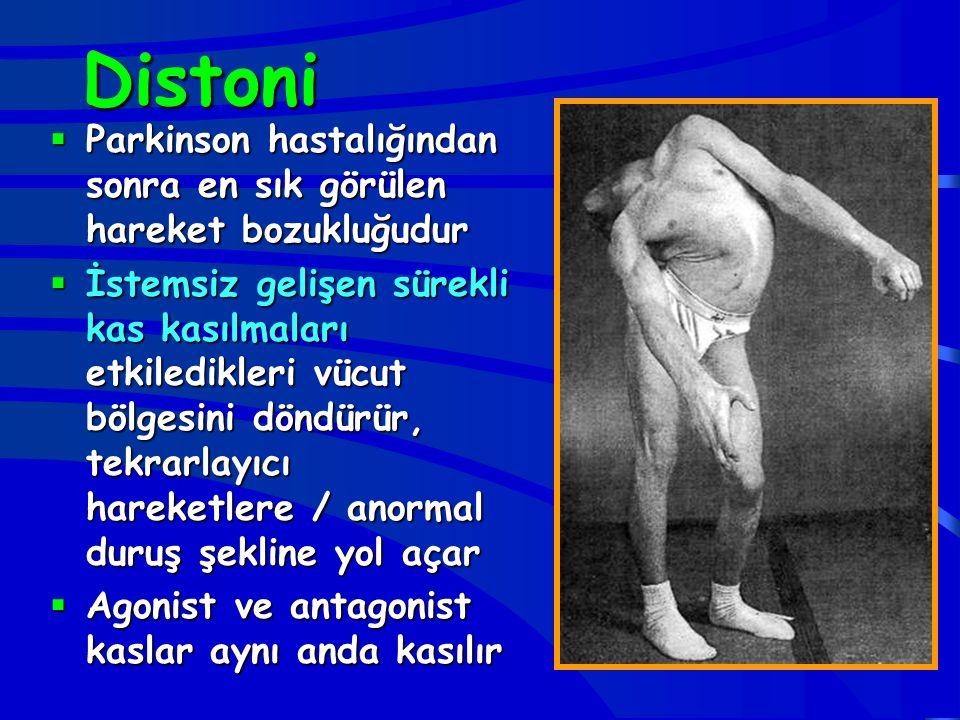 Distoni  Parkinson hastalığından sonra en sık görülen hareket bozukluğudur  İstemsiz gelişen sürekli kas kasılmaları etkiledikleri vücut bölgesini d