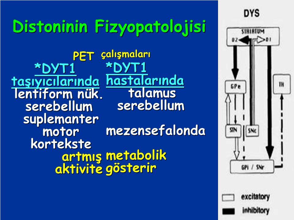 Distoninin Fizyopatolojisi PET PET*DYT1taşıyıcılarında lentiform nük. lentiform nük. serebellum serebellum suplemanter motor kortekste artmış aktivite