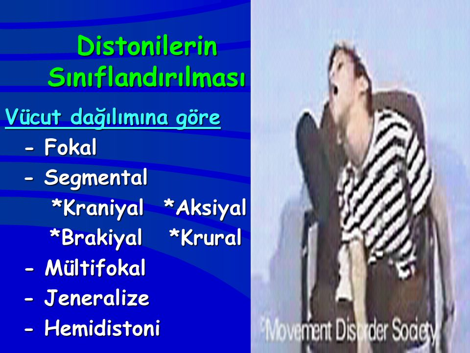 Distonilerin Sınıflandırılması Vücut dağılımına göre - Fokal - Fokal - Segmental *Kraniyal *Aksiyal *Brakiyal *Krural *Brakiyal *Krural - Mültifokal -