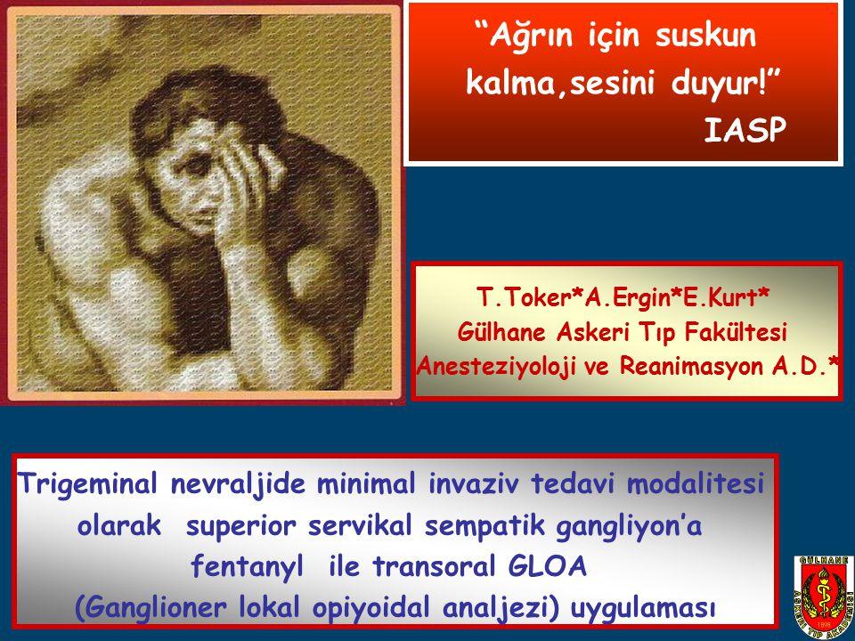Trigeminal nevraljide minimal invaziv tedavi modalitesi olarak superior servikal sempatik gangliyon'a fentanyl ile transoral GLOA (Ganglioner lokal op