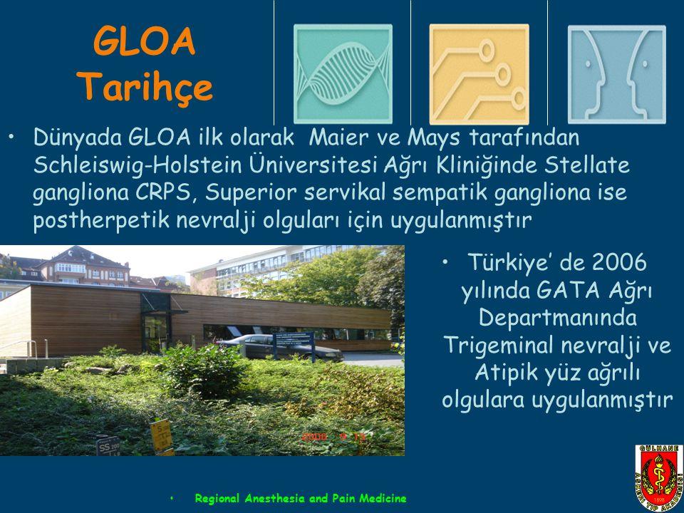 GLOA Tarihçe Dünyada GLOA ilk olarak Maier ve Mays tarafından Schleiswig-Holstein Üniversitesi Ağrı Kliniğinde Stellate gangliona CRPS, Superior servi