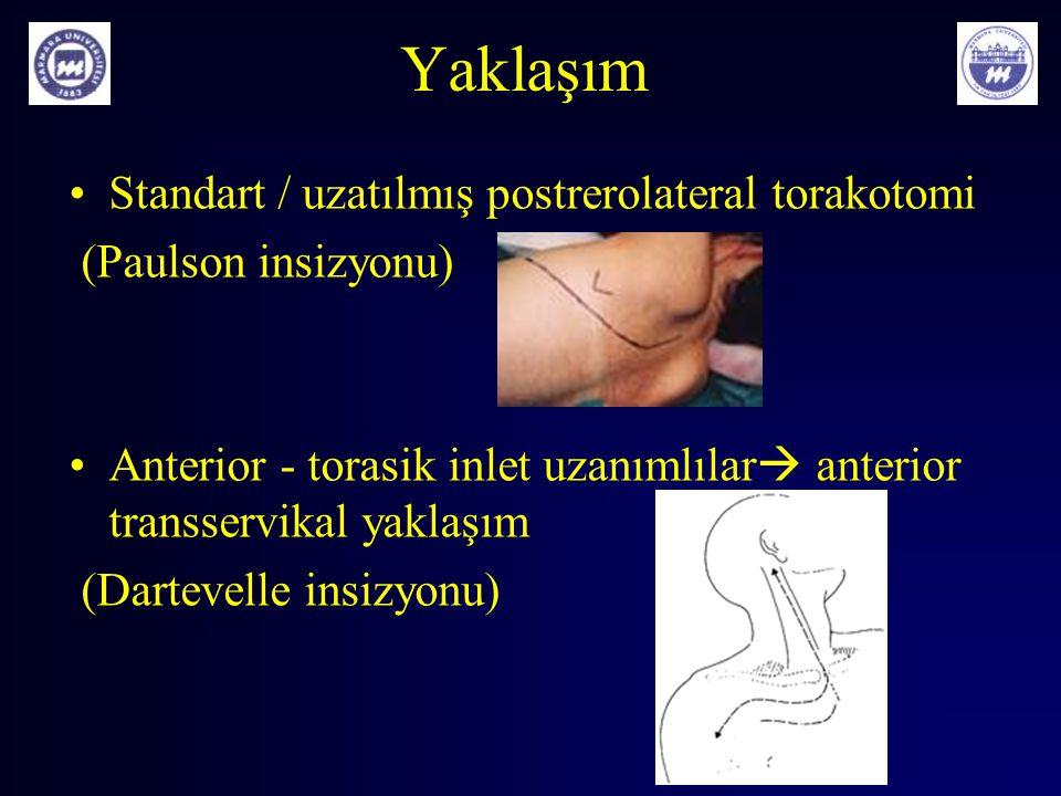 Yaklaşım Standart / uzatılmış postrerolateral torakotomi (Paulson insizyonu) Anterior - torasik inlet uzanımlılar  anterior transservikal yaklaşım (D