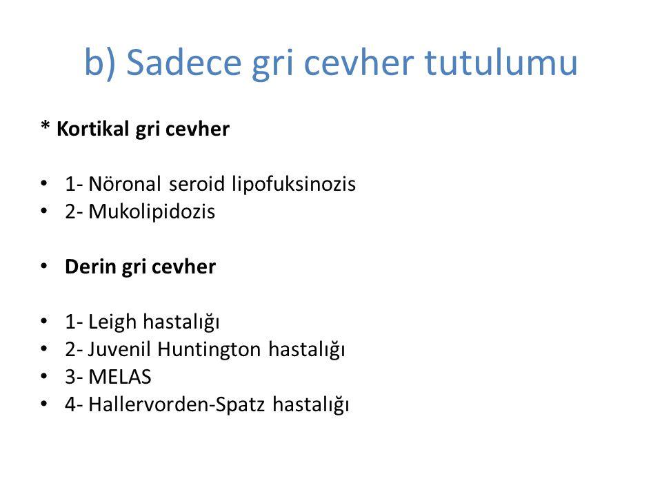 b) Sadece gri cevher tutulumu * Kortikal gri cevher 1- Nöronal seroid lipofuksinozis 2- Mukolipidozis Derin gri cevher 1- Leigh hastalığı 2- Juvenil Huntington hastalığı 3- MELAS 4- Hallervorden-Spatz hastalığı
