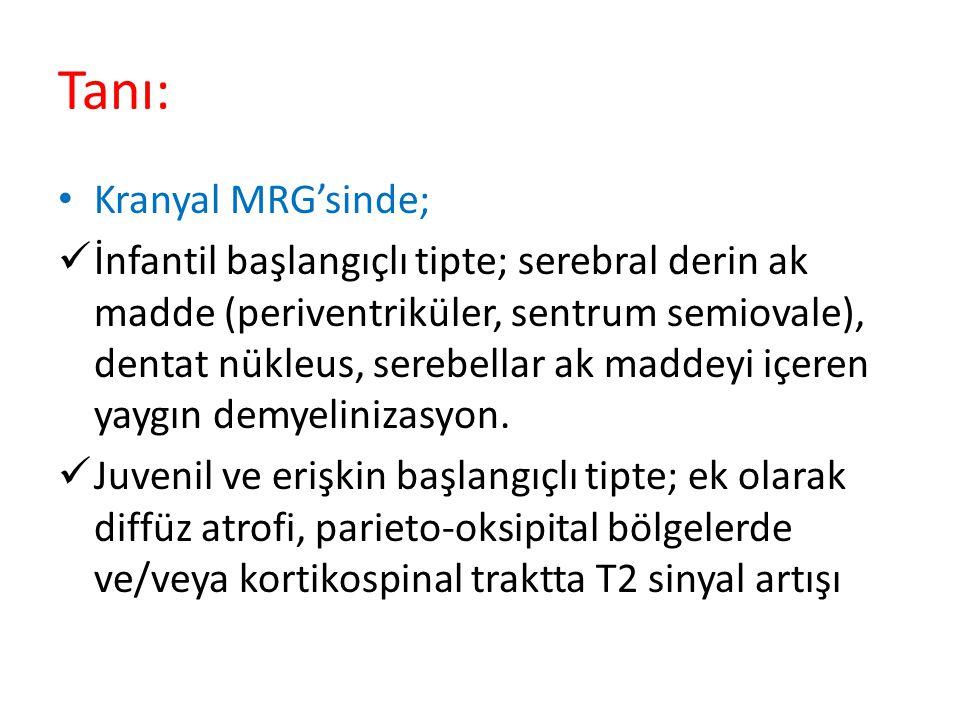 Tanı: Kranyal MRG'sinde; İnfantil başlangıçlı tipte; serebral derin ak madde (periventriküler, sentrum semiovale), dentat nükleus, serebellar ak maddeyi içeren yaygın demyelinizasyon.