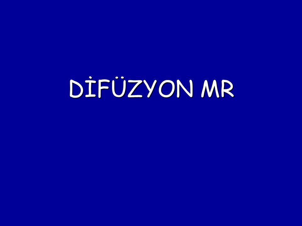 DİFÜZYON MR