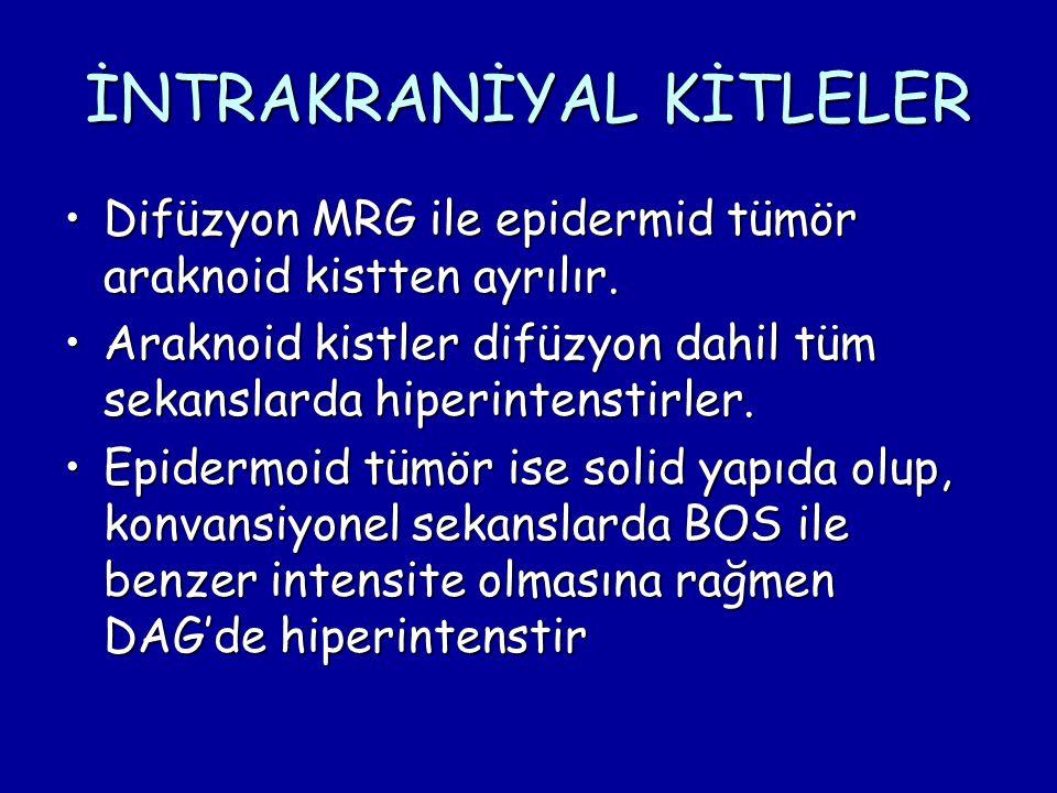 İNTRAKRANİYAL KİTLELER Difüzyon MRG ile epidermid tümör araknoid kistten ayrılır.Difüzyon MRG ile epidermid tümör araknoid kistten ayrılır. Araknoid k