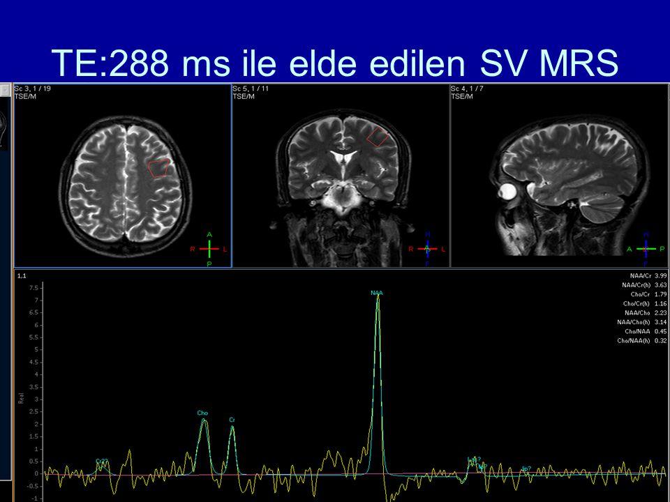 TE:288 ms ile elde edilen SV MRS