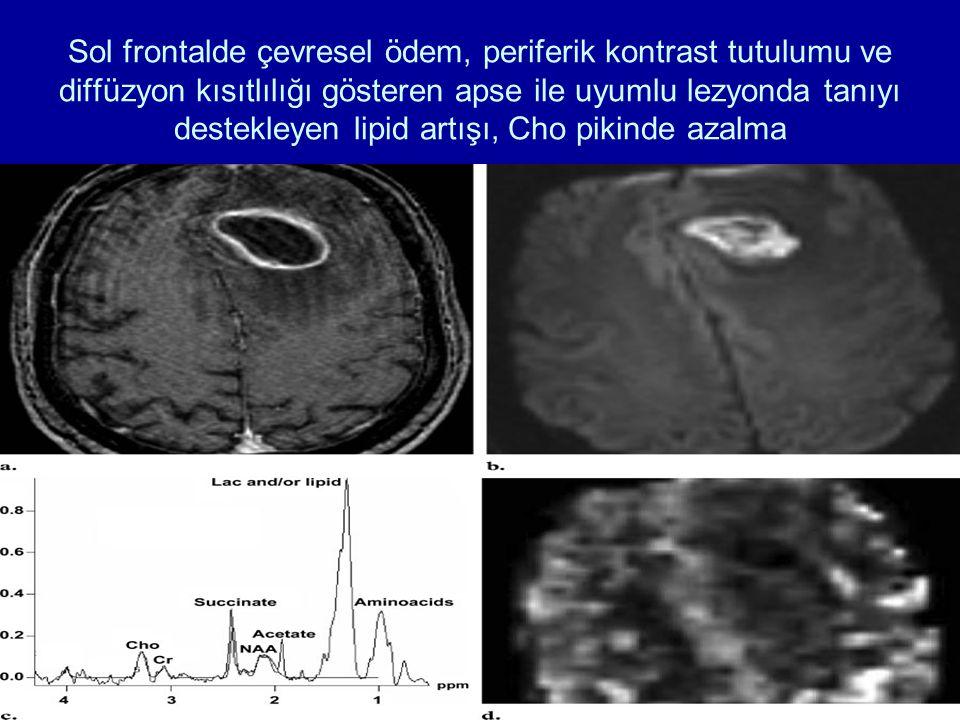 Sol frontalde çevresel ödem, periferik kontrast tutulumu ve diffüzyon kısıtlılığı gösteren apse ile uyumlu lezyonda tanıyı destekleyen lipid artışı, Cho pikinde azalma