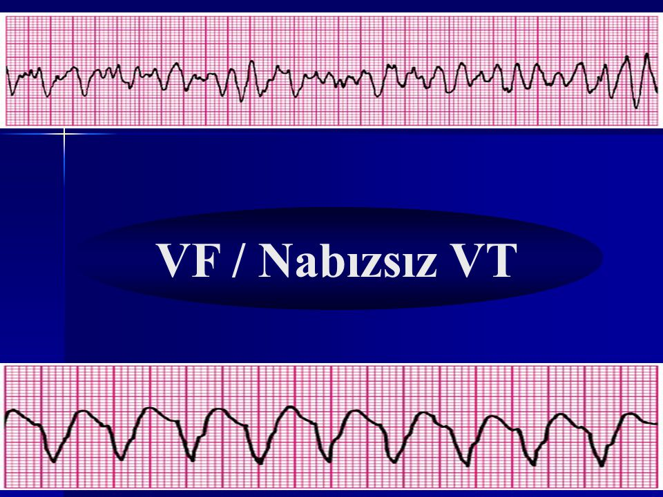 NABIZ VAR MI? Nabız YOK!!!! VF / Nabızsız VT