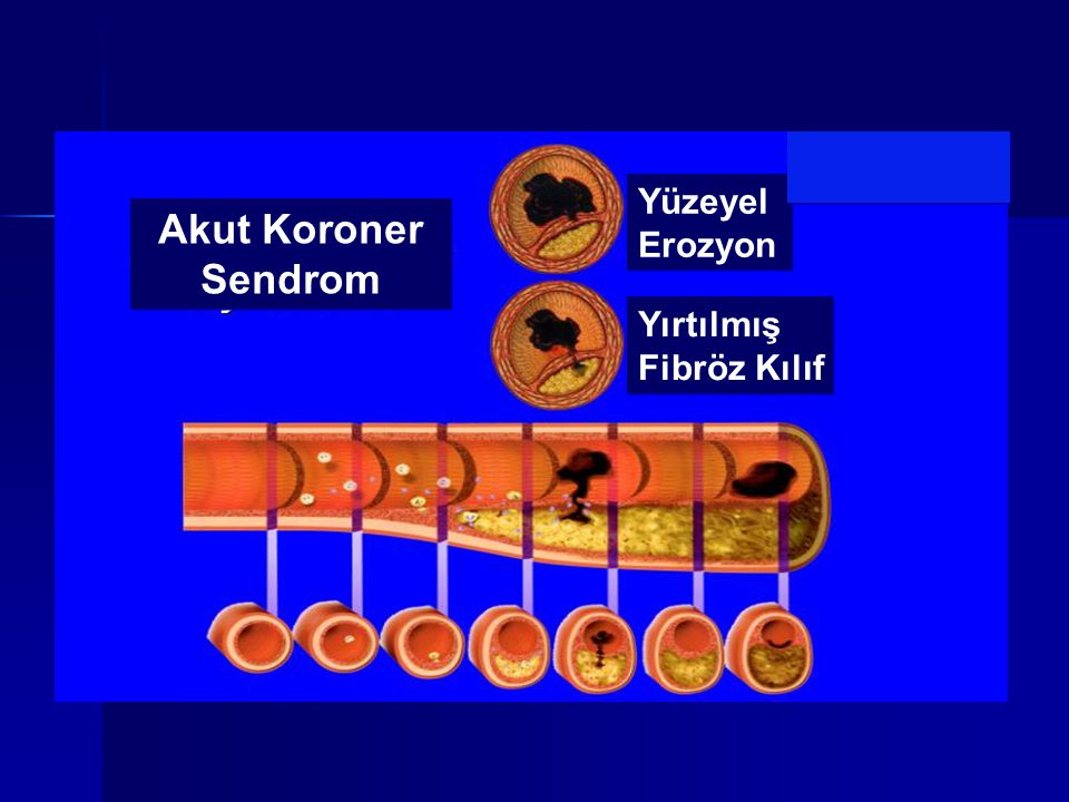 Akut Koroner Sendrom Akut Koroner Sendrom Yüzeyel Erozyon Yüzeyel Erozyon Yırtılmış Fibröz Kılıf Yırtılmış Fibröz Kılıf