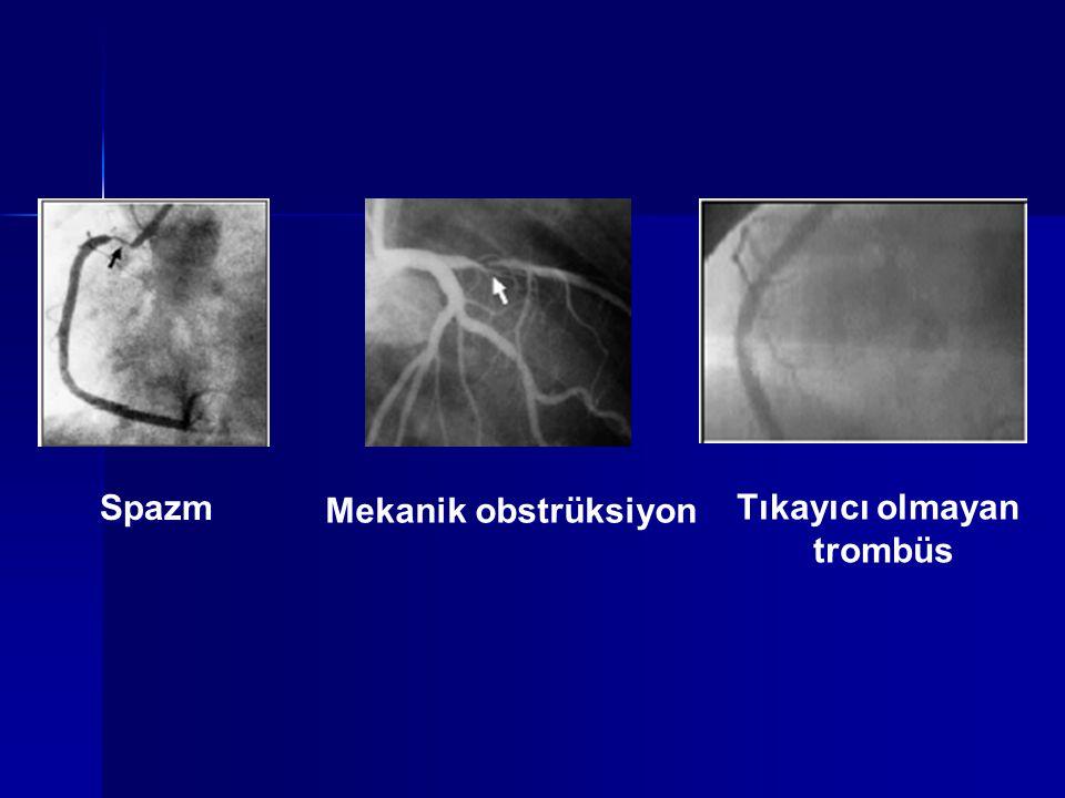 Spazm Mekanik obstrüksiyon Tıkayıcı olmayan trombüs Tıkayıcı olmayan trombüs