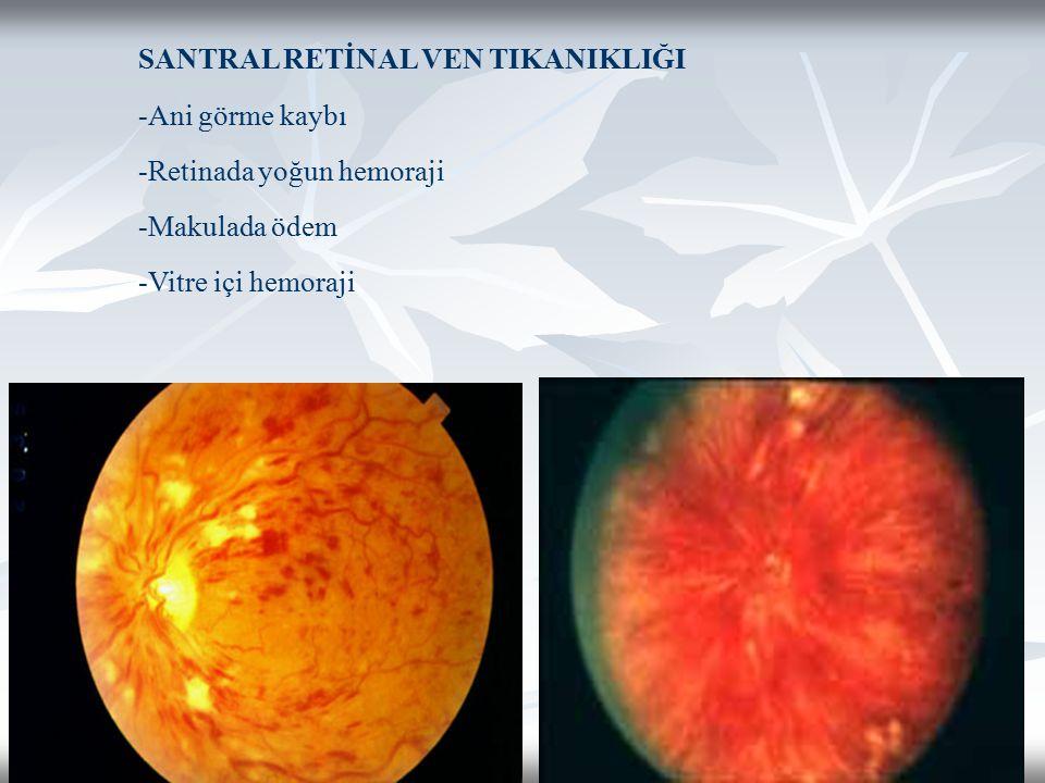 SANTRAL RETİNAL VEN TIKANIKLIĞI -Ani görme kaybı -Retinada yoğun hemoraji -Makulada ödem -Vitre içi hemoraji