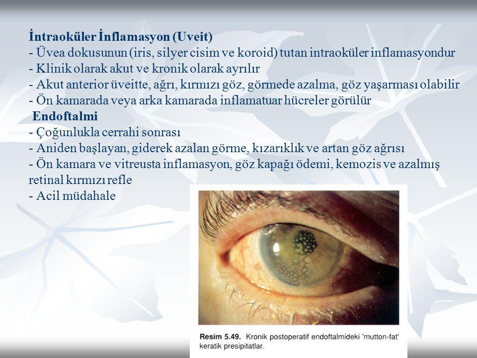 İntraoküler İnflamasyon (Uveit) - Üvea dokusunun (iris, silyer cisim ve koroid) tutan intraoküler inflamasyondur - Klinik olarak akut ve kronik olarak