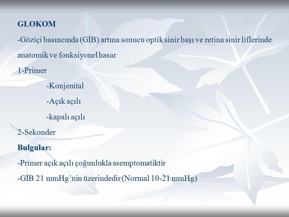 GLOKOM -Göziçi basıncında (GİB) artma sonucu optik sinir başı ve retina sinir liflerinde anatomik ve fonksiyonel hasar 1-Primer -Konjenital -Açık açıl