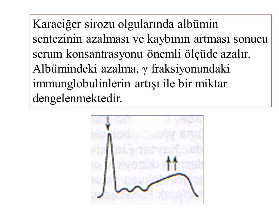 Karaciğer sirozu olgularında albümin sentezinin azalması ve kaybının artması sonucu serum konsantrasyonu önemli ölçüde azalır. Albümindeki azalma, γ f