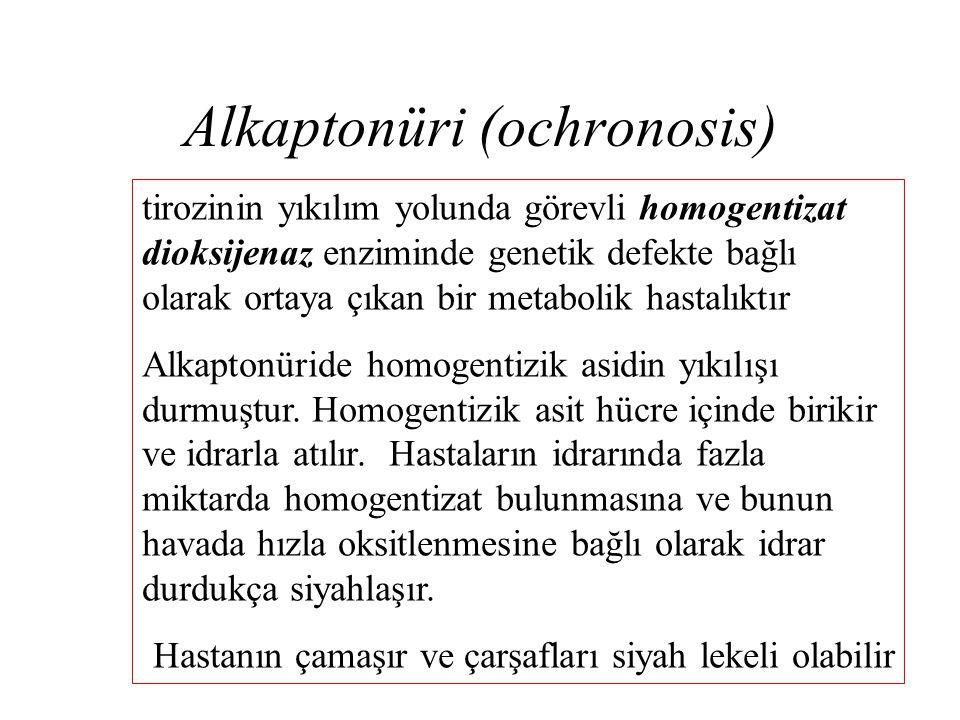 Alkaptonüri (ochronosis) tirozinin yıkılım yolunda görevli homogentizat dioksijenaz enziminde genetik defekte bağlı olarak ortaya çıkan bir metabolik