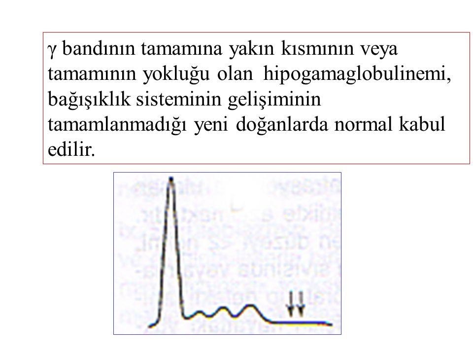 γ bandının tamamına yakın kısmının veya tamamının yokluğu olan hipogamaglobulinemi, bağışıklık sisteminin gelişiminin tamamlanmadığı yeni doğanlarda n