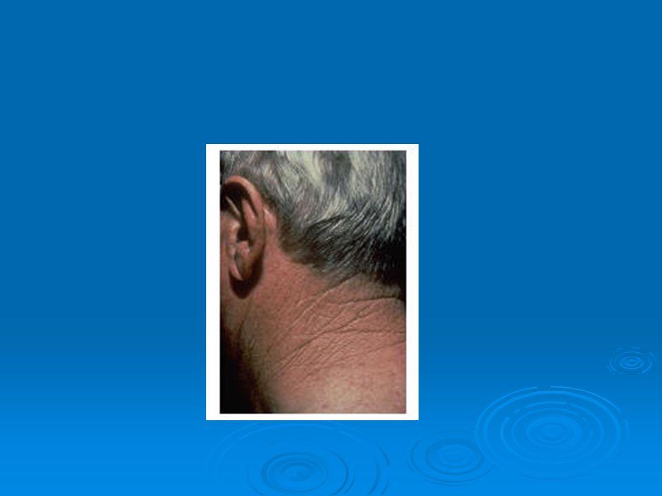 Takvimsel yaşlanmaya etki eden faktörler  Genetik Miraslar  Güneşe Maruziyet  Soğuk Havaya maruziyet  Alkol kullanımı  Sigara kullanımı  Stres  Hormonal değişiklikler  Ekzersiz Eksikliği